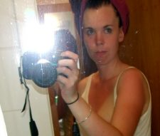 Sonnenbrand ^^