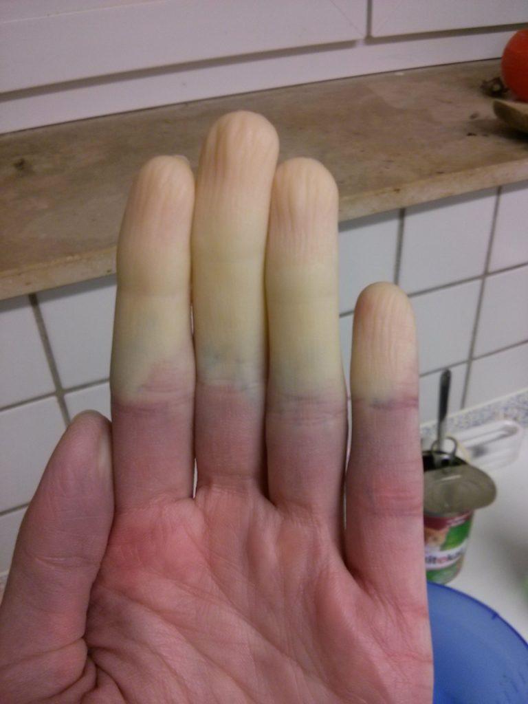 Meine allabendliche Zombiehand, direkt von heute. Finger sind noch dran!